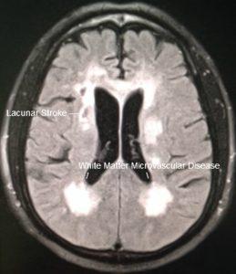 CADASIL Migraine